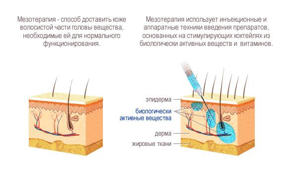 Как лечить псориаз азовское море