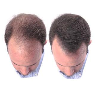 Пересадки волос цена
