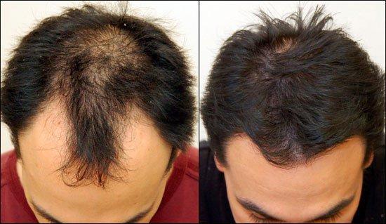 Клиники по пересадке волос в ростове